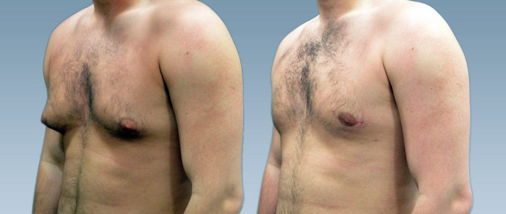 Getting Rid of Man Boobs: Before and after Gynecomastia treatment.